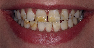 Dental before photo 2 | general dentist | Nathanson Dental | Hunt Valley MD