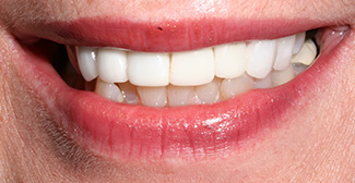 Dental after photo 5 | general dentist | Nathanson Dental | Hunt Valley MD