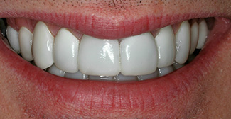 Dental after photo 6 | general dentist | Nathanson Dental | Hunt Valley MD